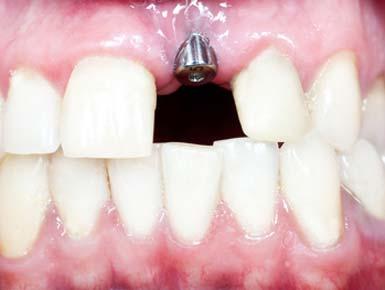 Nach Implantation folgt die Einheilzeit - diese dauert mehrere Monate.