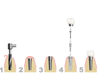 Implantat Behandlung in fünf Schritten für sie von Praxis Paudler Erfurt.