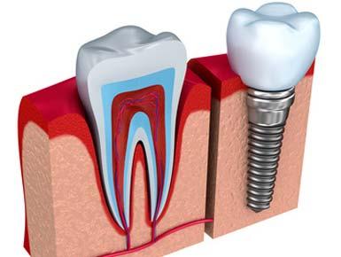 Implantat - Behandlungen informieren Sie sich dazu bei uns in der Praxis.