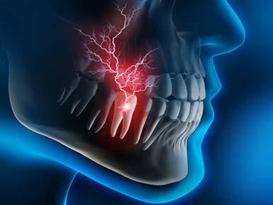 Implantat Versorgungen der Zähne müssen geplant werden zuerst Diagnose.