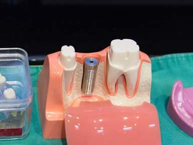 Implantate funktionieren genau wie gesunde Zähne informieren Sie sich.
