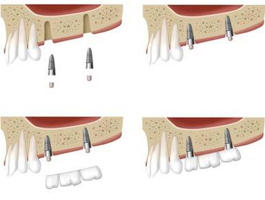 Implantate seit 30 Jahren bewährte Praxis auch bei Zahnarzt Paudler.